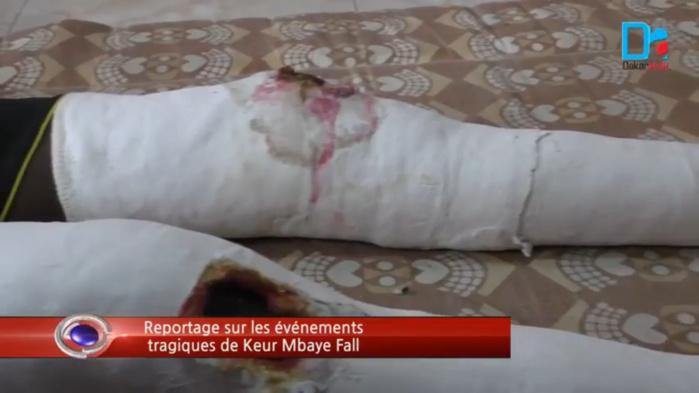 AGRESSION A KEUR MBAYE FALL : L'Association des délégués de quartiers condamne et exige une autorisation de port d'arme