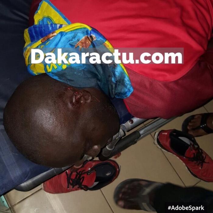 Serigne Bassirou Mbacké Secrétaire Général UJTL de Guédiawaye et des manifestants grièvement blessés à la tête (IMAGES)