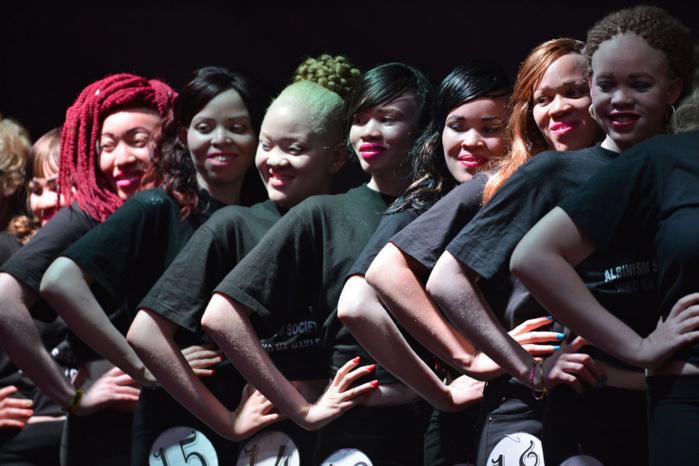 Kenya : un concours de beauté pour albinos afin de faire avancer les mentalités