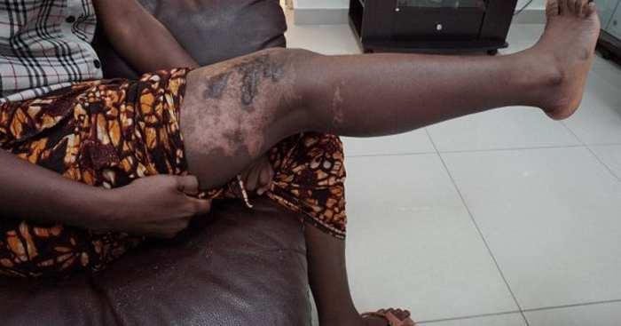 Querelles domestiques : Rosalie Faye ébouillante sa belle-sœur à Pikine Icotaf