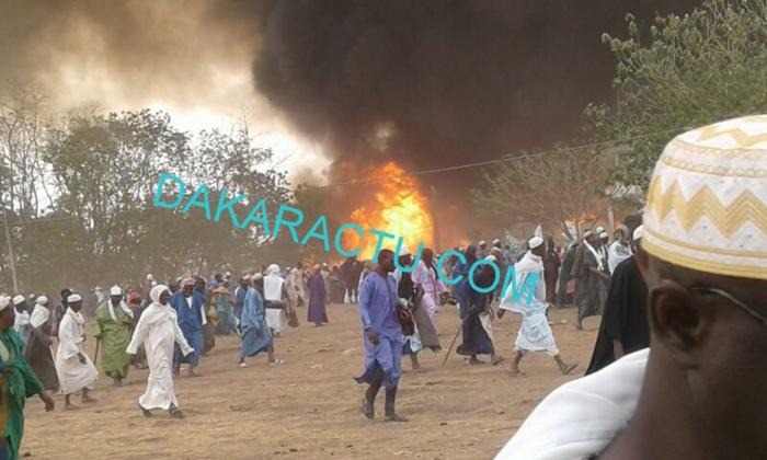 Le Centre de Traitement des Brûlés : Un espoir pour le Sénégal.