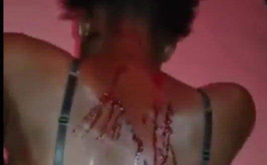Touba : La fille violentée par son mari porte plainte