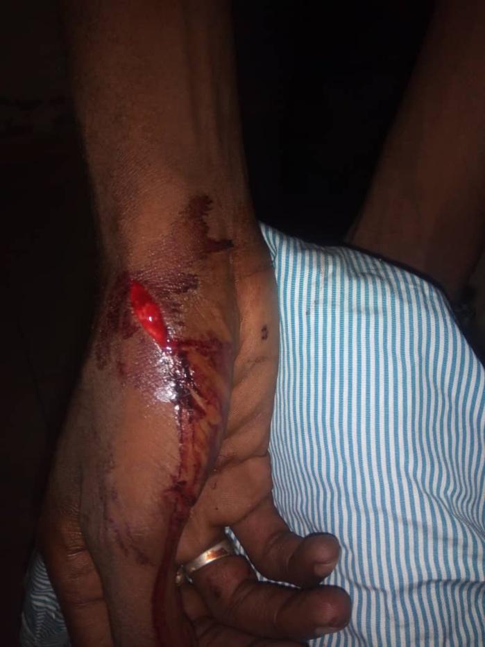 Opération de parrainage à Thiès : Un responsable de l'Apr victime d'une agression à Mbour 4