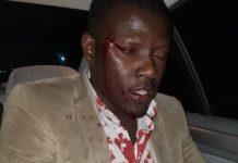 Campagne Électorale : La caravane des militants de  PASTEF attaquée au quartier Pikine de Saint-Louis (quatre personnes blessées)