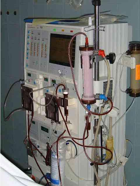 Fourniture de kits d'hémodialyse: Bonne nouvelle pour les hémodialysés !