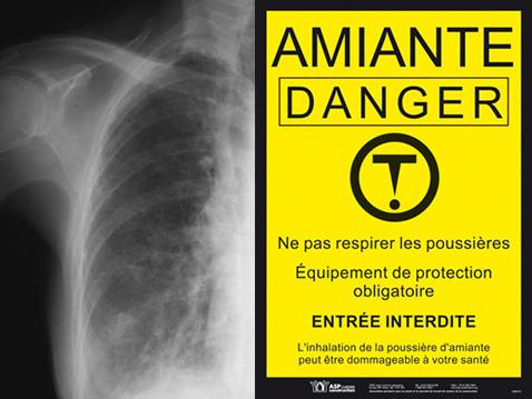 L'amiante au Senegal : pas de probleme, nous en sommes invulnérables.