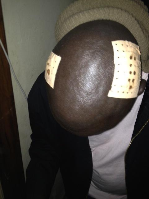 Les photos de Daddy Bibson après l'agression.