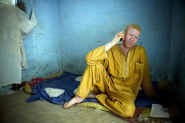 Sénégal: la peur s'empare des albinos.