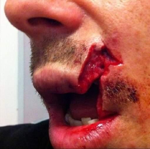 La terrible blessure d'un rugbyman grenoblois