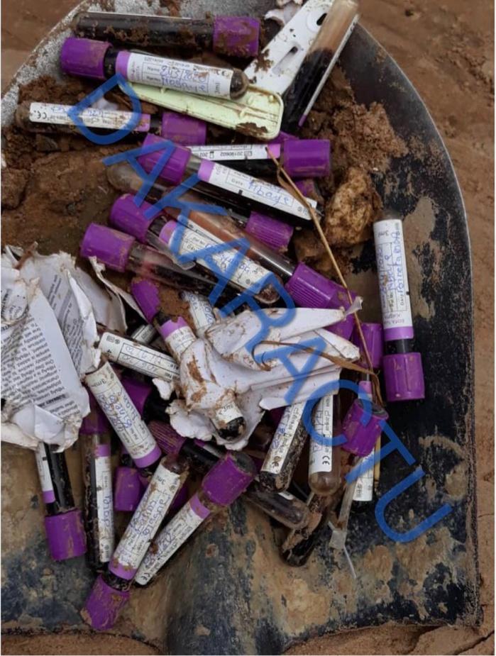 Thiès / Déchets médicaux : Des tubes de prélèvements sanguins et poches de sang récents retrouvés en plein quartier Diamaguène.