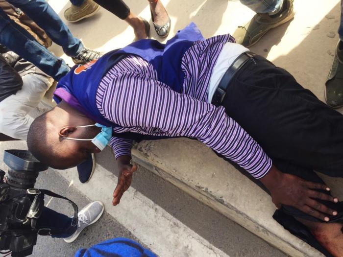 Rond-point Mermoz : Un reporter reçoit une balle à blanc à la jambe