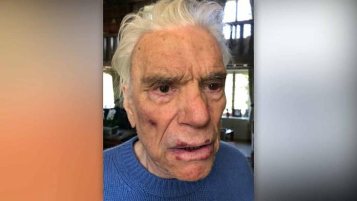 Les photos des blessures des époux Tapie après leur violent cambriolage.