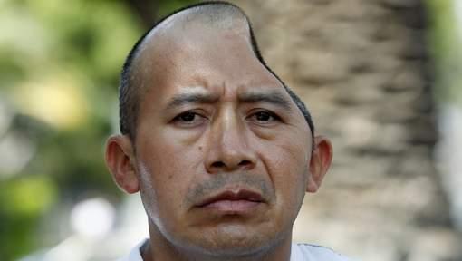Il reçoit 44 millions pour avoir perdu une partie de la tête