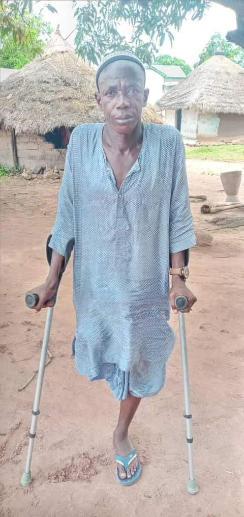 VÉLINGARA : Amputé de la jambe, Mamadou Baldé, un artiste de renom, laissé à lui-même…