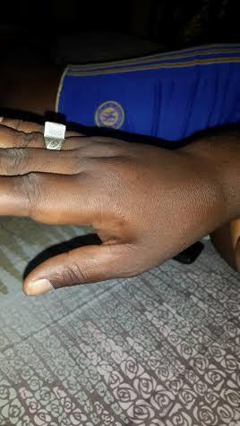 Le chef de station de Rfm-Mbacké torturé par 5 éléments du GMI « L'adjudant Dieng a voulu me briser les doigts et les côtes » accuse-t-il