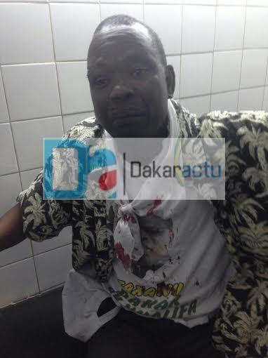 """26 partisans de Bamba Fall grièvement blessés à coups de machette, le maire sortant dénonce: """"C'est Seydou Guèye qui est derrière ces attaques, aidé en cela par Paco Jackson et un frère de Gris Bordeaux!"""""""