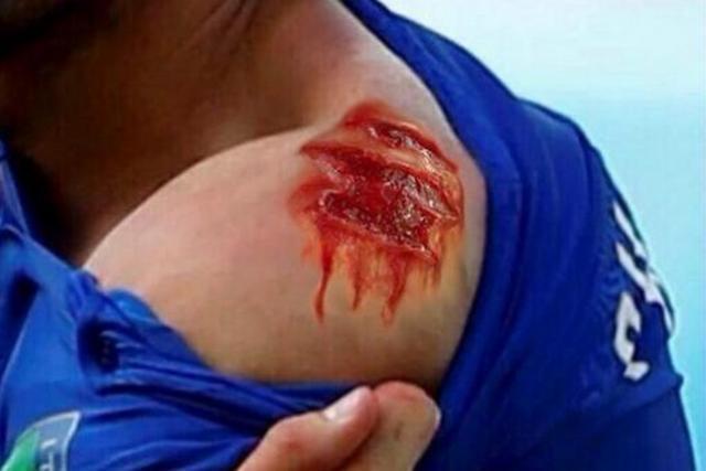 """Mondial 2014: voici les meilleurs """"photo-montage"""" publiés sur le web après l'agression de Luis Suarez (photos)"""