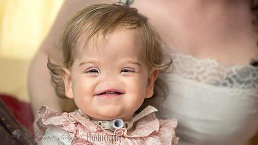 Une petite fille née sans nez
