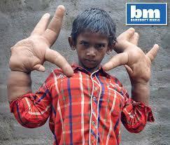 La mystérieuse maladie d'un jeune Indien aux mains devenues énormes