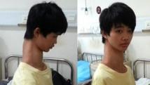Le ''garçon girafe'', un jeune Chinois au cou anormalement long