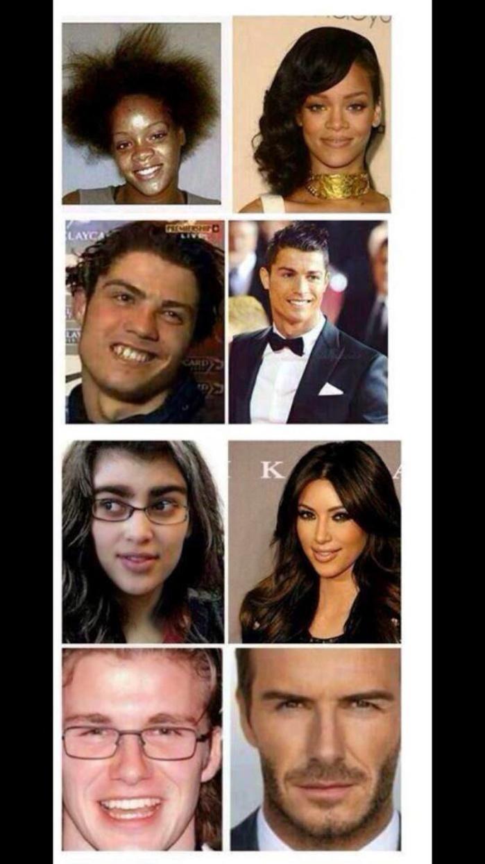 L'argent rend beau ! Regardez ces stars qui ont énormément changé