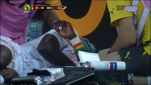 Cheikh Mbengue est totalement KO.