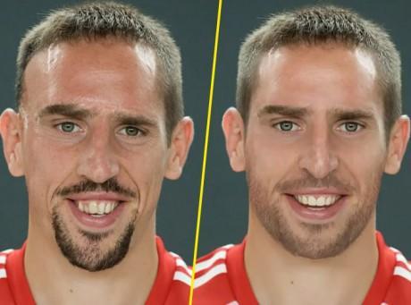 A quoi ressemblerait Franck Ribéry s'il n'avait pas eu son accident ?