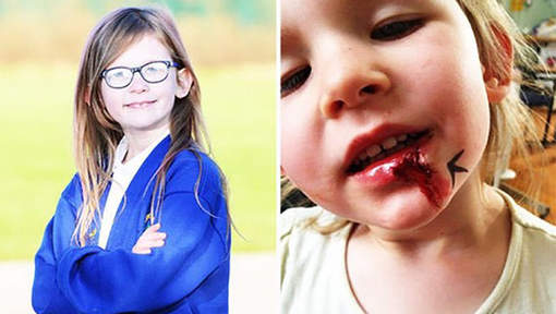 Insolite : La petite fille qui ne mange pas, ne dort pas et ne ressent pas la douleur