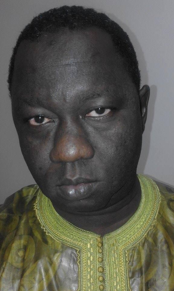 Dr babacar Ndiaye Amdy Diouf : UN OUI DU BOUT DES LÈVRES
