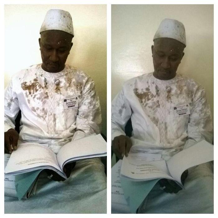 Photo : Le responsable PS des Parcelles, Mamoudou Wane, à la suite de son agressiond u 5 mars dernier