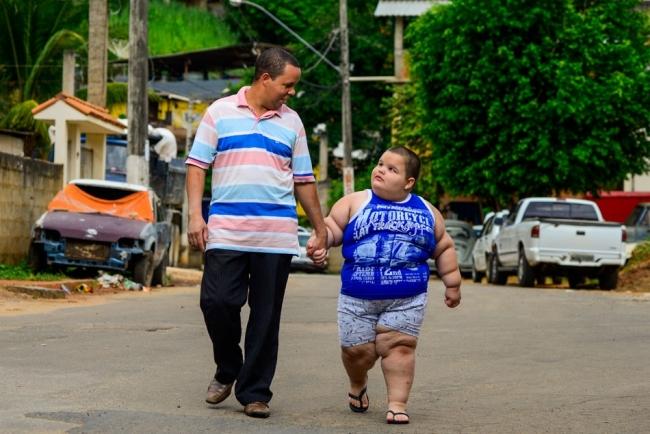 Il pèse 80 kg à 5 ans: sa vie peut basculer à tout moment