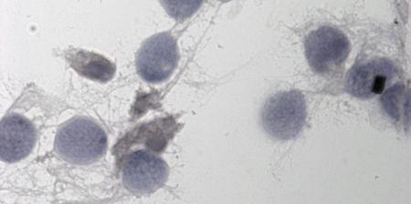 Canada : Plaintes contre une banque du sperme