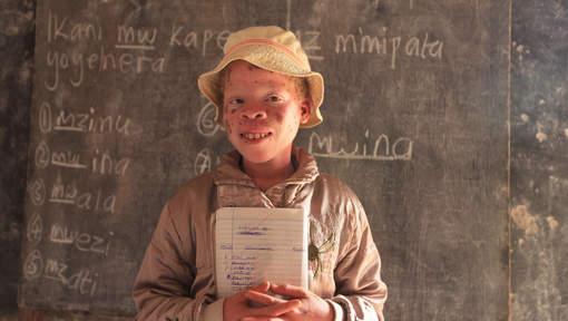 Journée internationale des albinos, minorité persécutée en Afrique