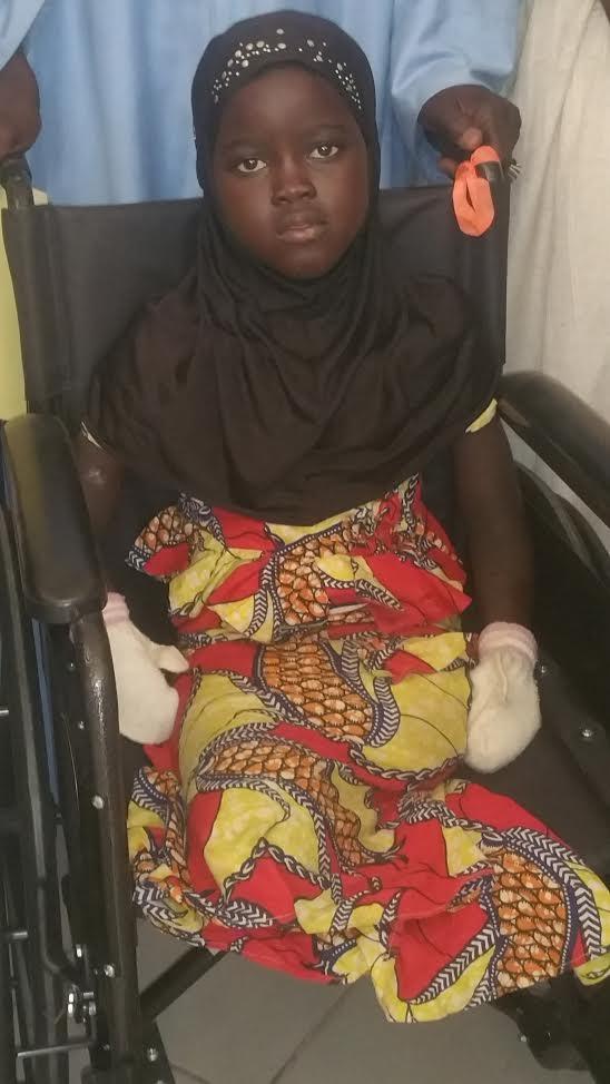 TOUBA - Une maladie mystérieuse a rongé les membres de N'dèye Diodio Diop