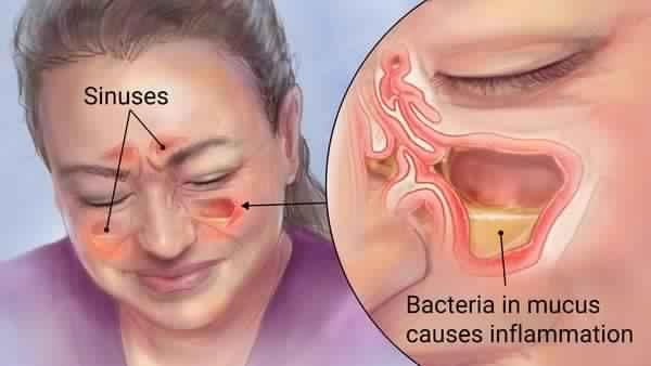 Débarrassez Vous de La Sinusite en 20 Secondes Seulement