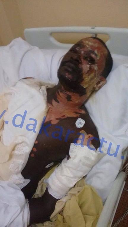 WANTED - Ndèye Diallo verse de l'huile chaude sur son mari et s'enfuie