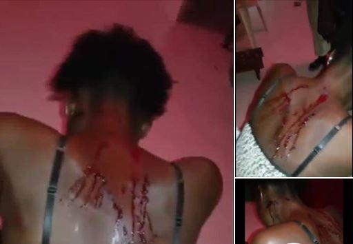 Rebondissement spectaculaire dans l'affaire de la femme battue à Touba : Ndèye Coumba retire sa plainte et pardonne à son mari