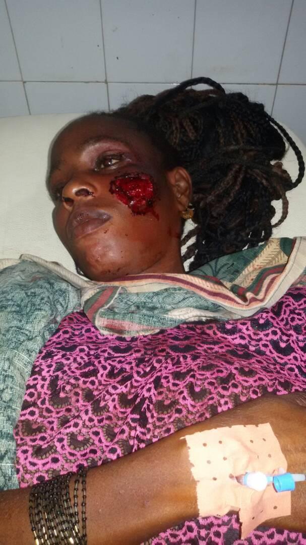 TOUBA-SAM / Violences entre co-épouses : La rançon d'une bagarre qui a mal tourné