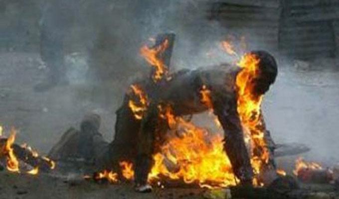 TOUBA- Moussa Konaté a tenté de s'immoler par le feu et lutte avec la.mort à l'hôpital Matlaboul Fawzeïni