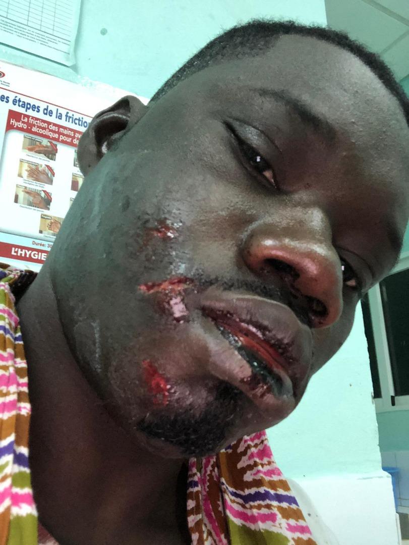 Urgent : Guin Thieuss sauvagement agressé...