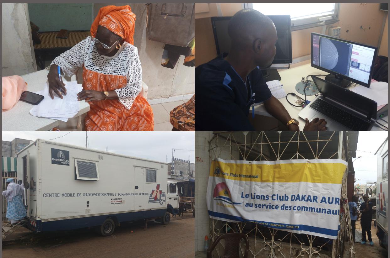Dépistage du cancer du sein à Guédiawaye : le centre de Diama et le Lion's Club au chevet des femmes démunies.