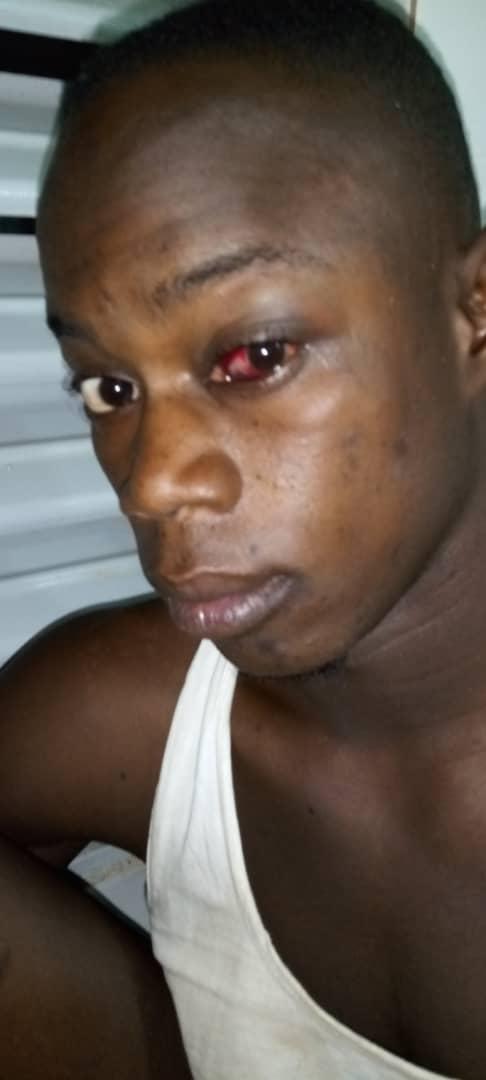 BRUTALITÉS POLICIÈRES À BAMBEY / Le commissaire sert des demandes d'explications  à ses agents et soigne, à ses frais, la victime.