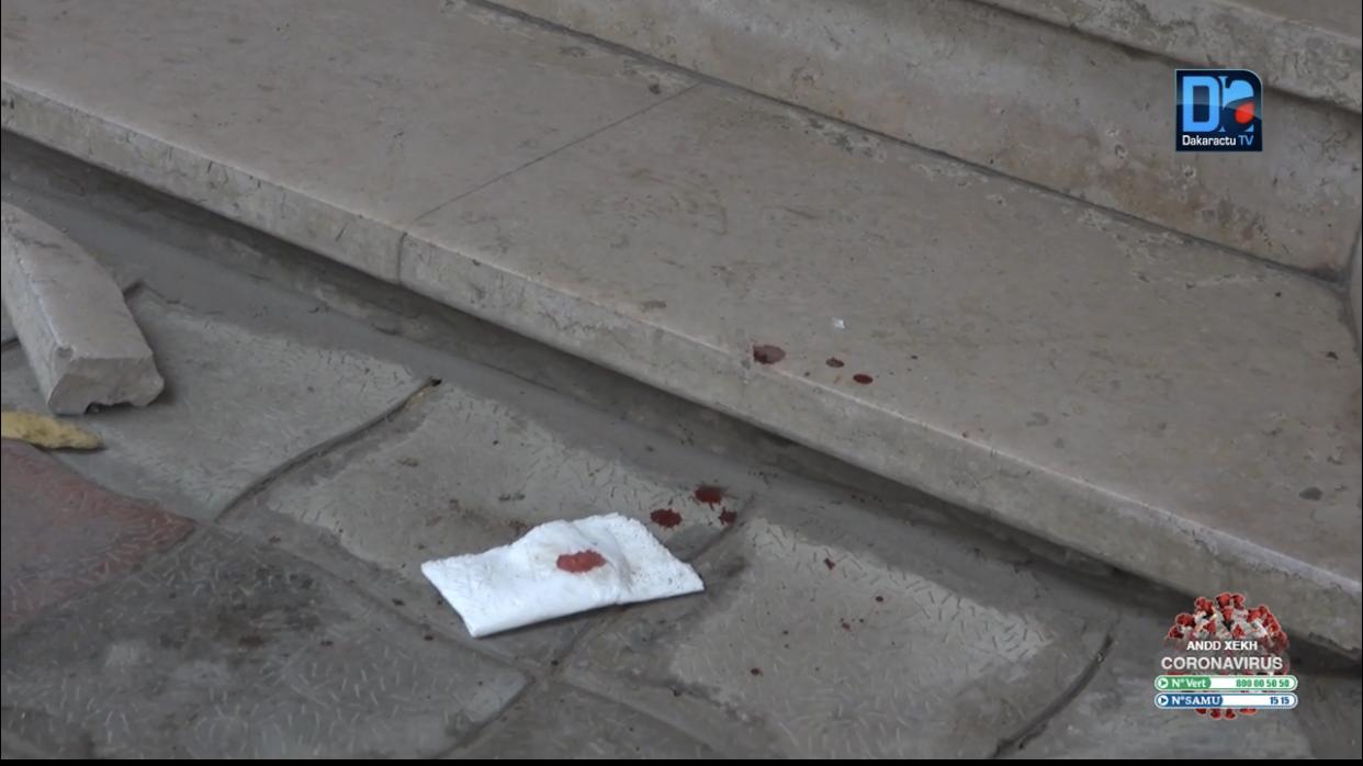Centre-ville: une voiture dérape, pénètre dans l'agence SGBS et fait deux blessés légers