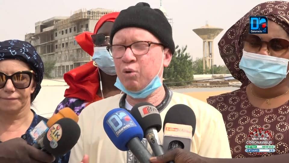 TOUBA / «Depuis longtemps, nous n'avons pas reçu de crème solaire venant de l'État du Sénégal» (ALBINOS).