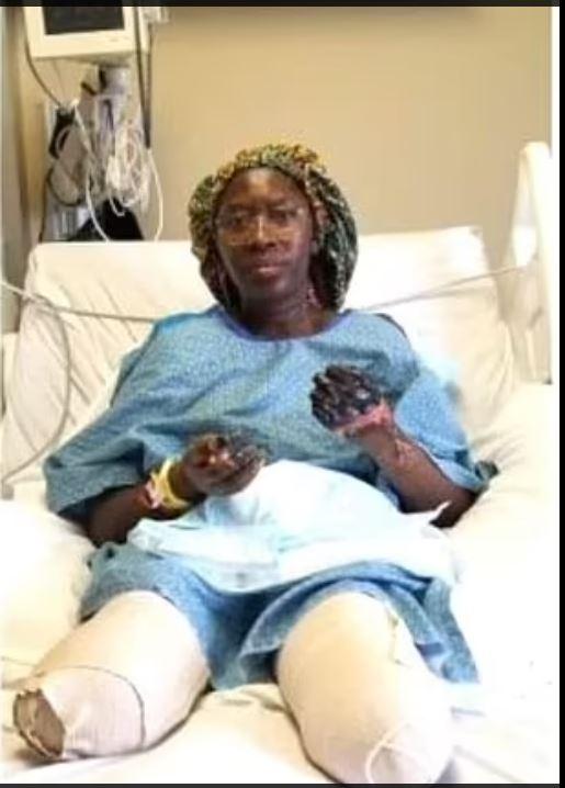 Minneapolis : après avoir reçu la deuxième dose du vaccin Pfizer-BioNTech, une employée médicale contracte le Covid-19 et se fait amputer les deux jambes