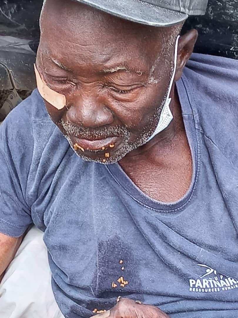 Retrouvé errant dans les rues de la Cité Gorgui : un homme d'un âge avancé et « non identifié » admis à l'hôpital Fann