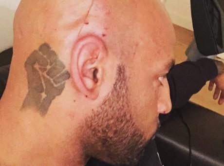 Booba crâne en sang sur Instagram, Rohff s'en mêle !