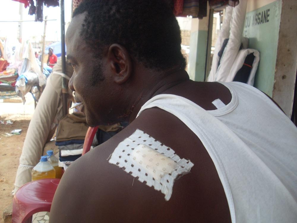 TOUBA- ÉGORGÉ, BABACAR NDIAYE DIT PAPE, ÉCHAPPE A LA MORT : Mon seul tort : « avoir dénoncé un voyou à la police! »