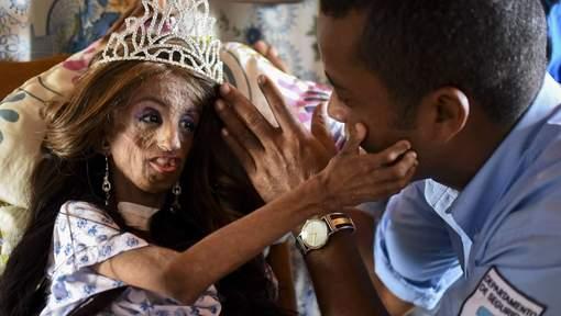 """À 15 ans, elle souffre d'une maladie de la peau : """"Je me trouve belle"""""""