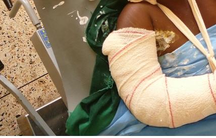 MBACKE - Un maire fracture l'avant-bras de sa première épouse